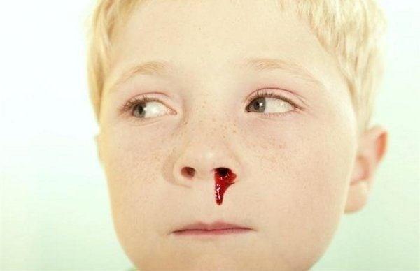 soñar que te sale mucha sangre de la nariz