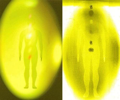 aura-amarilla